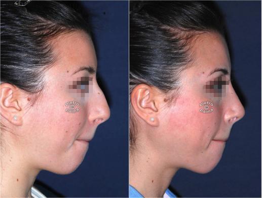 Scultura punta naso prima e dope foto