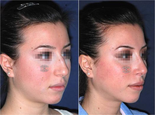 Scultura punta naso prima e dope foto 1
