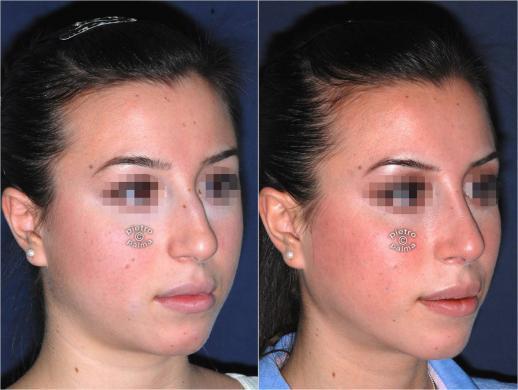 Scultura della punta Nasale - Nose Tip sculpting