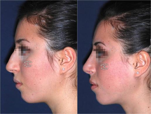 punta naso rinoplastica 1