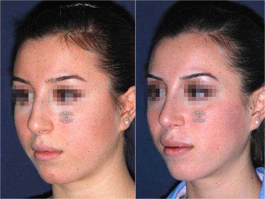 punta naso rinoplastica 2
