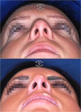 nasal tip surgery before and after 3