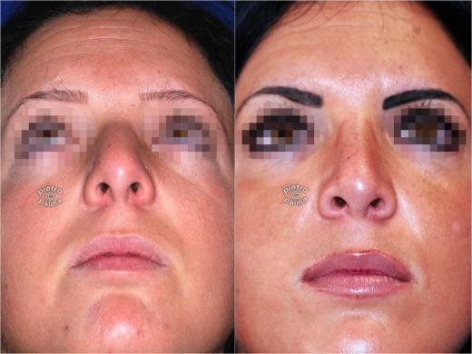 punta naso rinoplastica 5