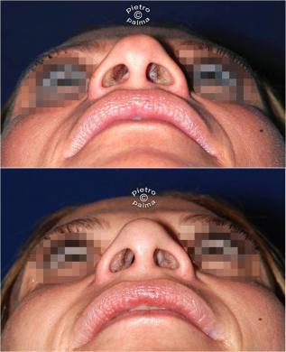 rifarsi la punta del naso