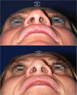 nose tip reduction before and after 3