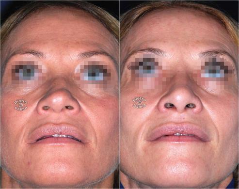 Scultura della punta Naso - Nose Tip sculpting