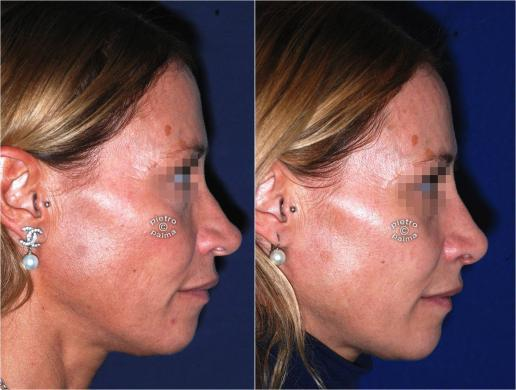 nose tip reduction before and after 5