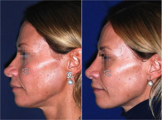 nose tip reduction before and after 7