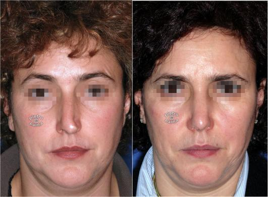 rhinoplasty before and after special cases woman 5