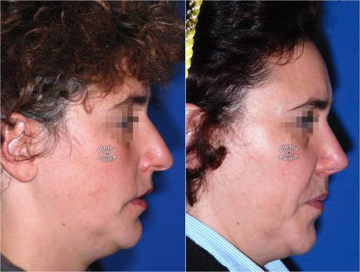 rhinoplasty before and after special cases woman 1