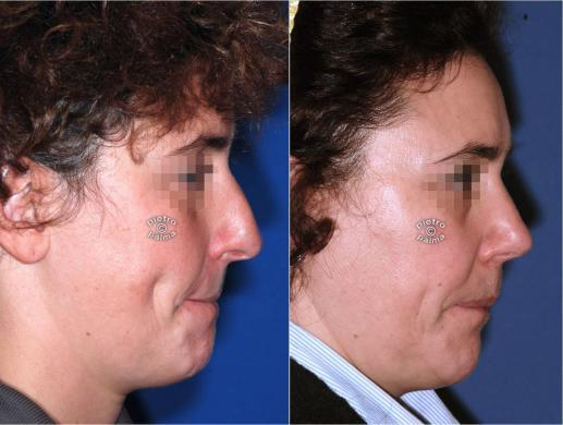 rhinoplasty before and after special cases woman 2