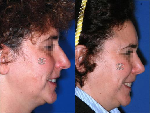 rhinoplasty before and after special cases image