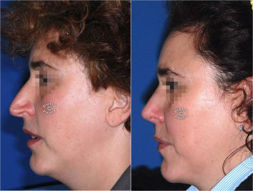 rhinoplasty before and after image