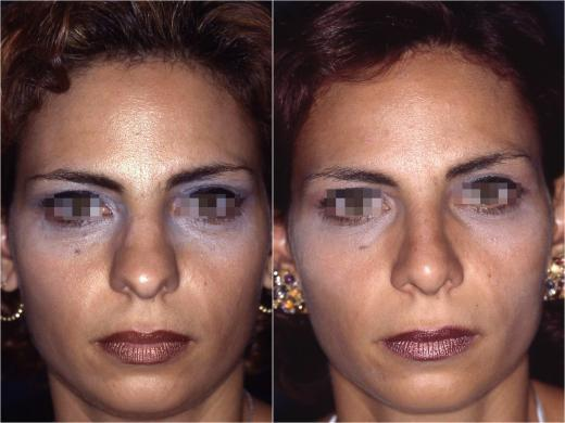 correzione punta naso 2