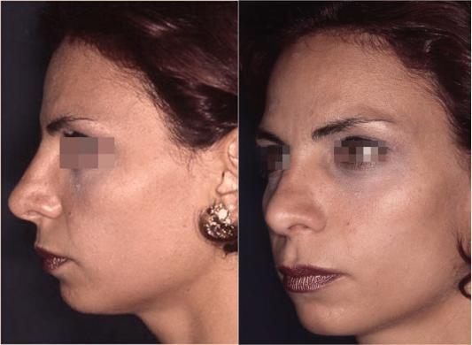 correzione punta naso 1