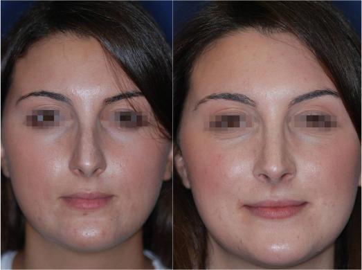 correzione punta naso 6