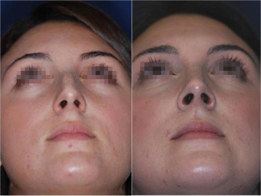 correzione punta naso 5