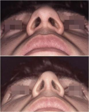 Drooping tip before and after