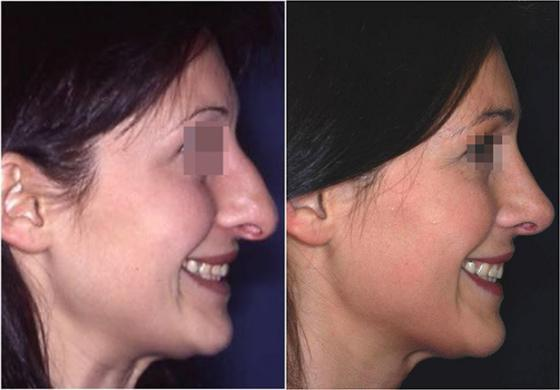 nasal tip surgery before and after