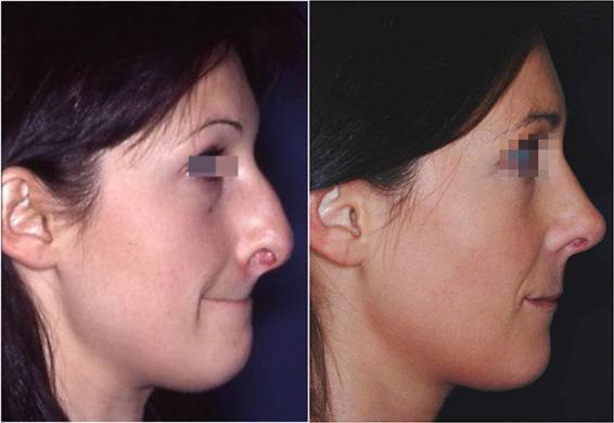 rinoplastica punta naso prima e dopo 1