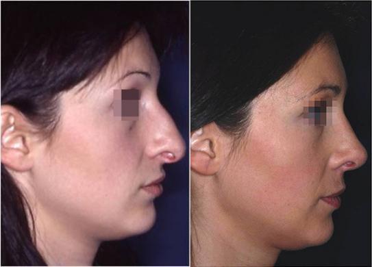rinoplastica punta naso prima e dopo 2