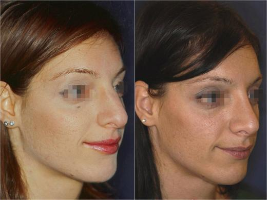 nose job before and after special cases woman