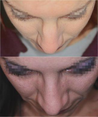 naso rifatto prima e dopo casi speciali donna 1