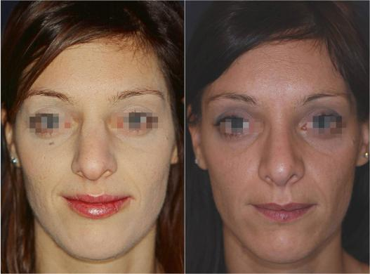 nose job before and after special cases woman 2